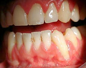 Zahnfleischentzündung - Wie das Rauchen Deinen Zähnen schadet